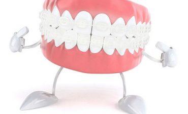 Ce trebuie să afli despre coroanele dentare?